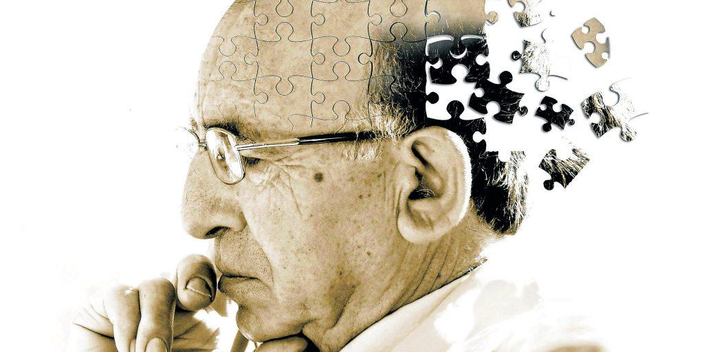 Alzheimer tratamiento actual
