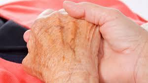 Alzheimer duración